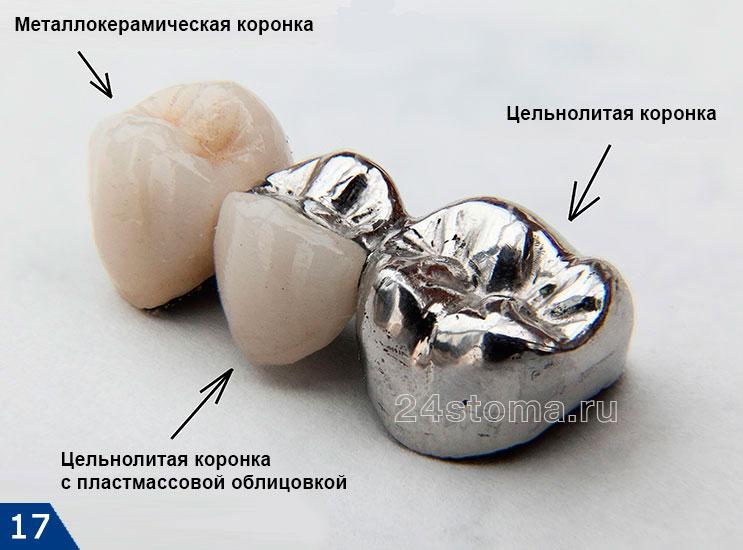 Зуб каминаЗуб камина